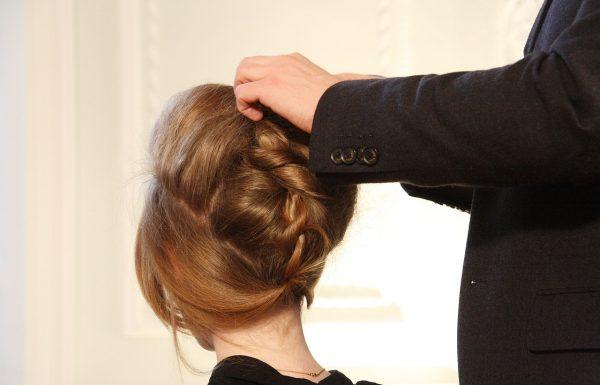 אלופציה אראטה (Alopecia Areata)